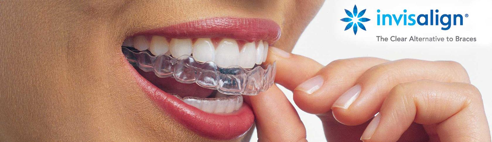 Zahnstellungskorrekturen mit durchsichtigen Schienen bei Erwachsenen (Invisalign®)