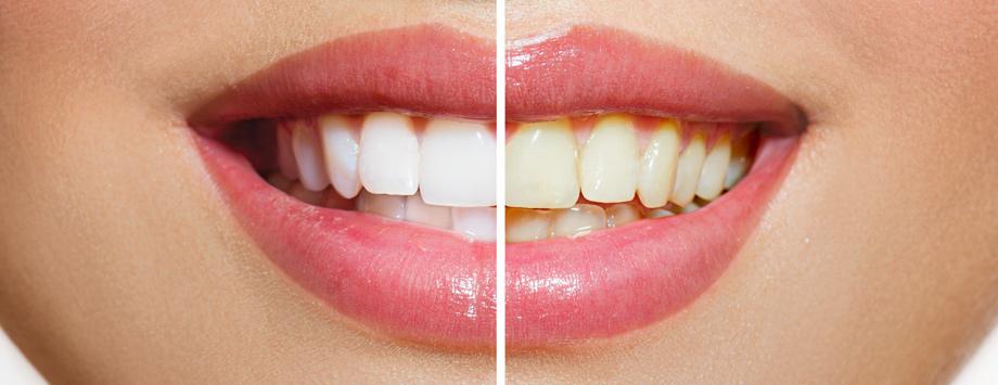 Bleaching Zahnaufhellung Nürtingen Vorher-Nachher-Bild